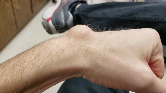 Draining Steve, the Huge Ganglion Cyst on my Wrist, with Aspiration